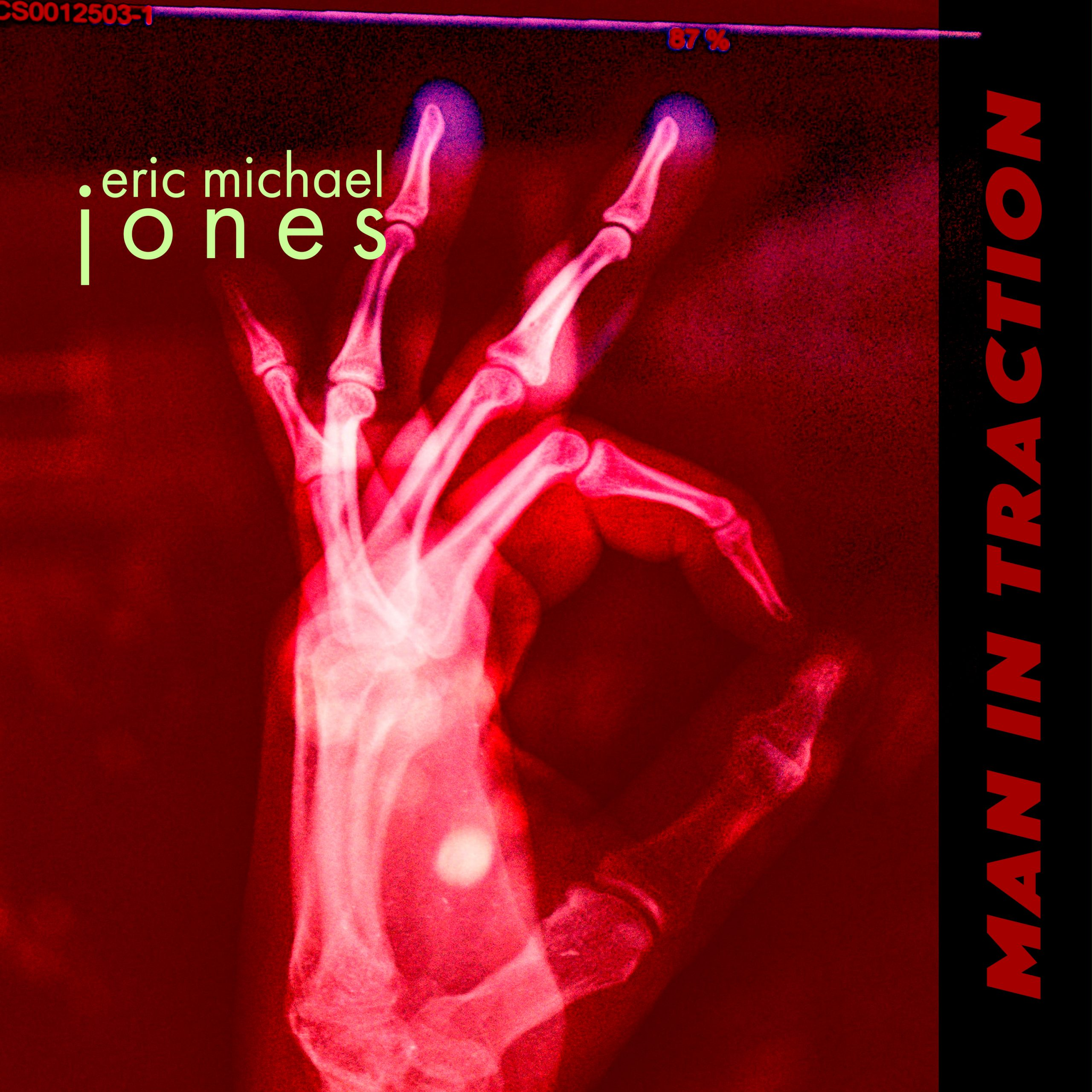 Cover art for Man In Traction, shows an x-ray of a hand giving the OK sign